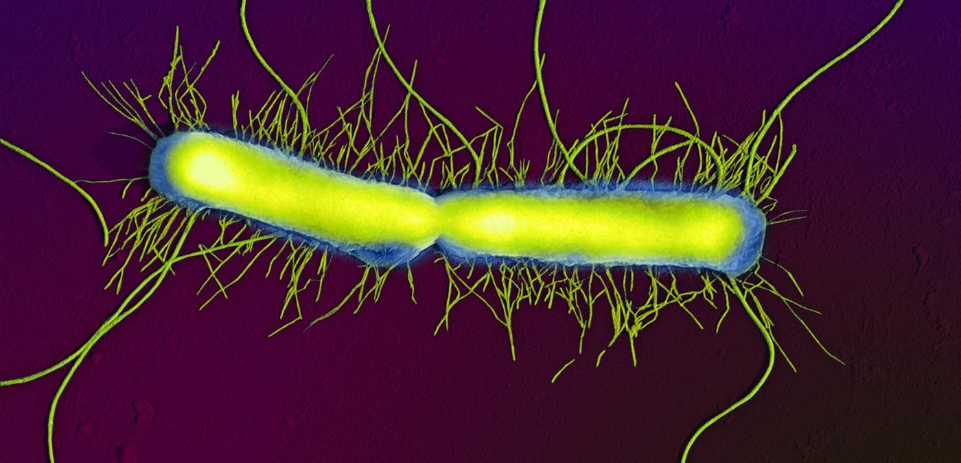 Bactérie Proteus Vulgaris