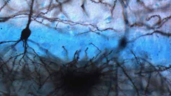 image de microscopie de neurones
