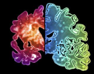 Image d'un hémisphère cérébral atteint d'Alzheimer et d'un hémisphère sain.