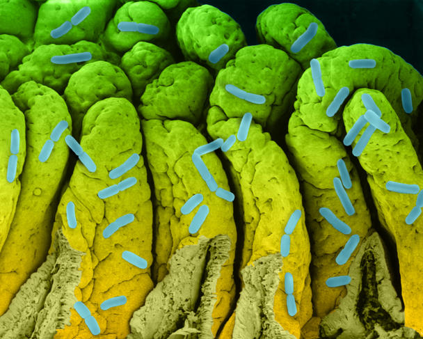 Bactérie e-coli