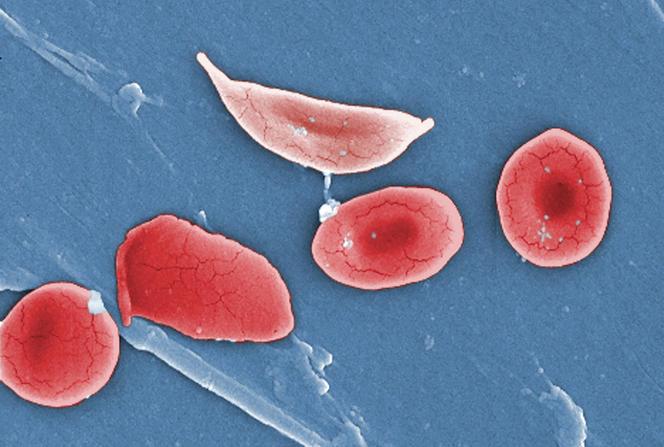 Globule rouge déformé par la drépanocytose