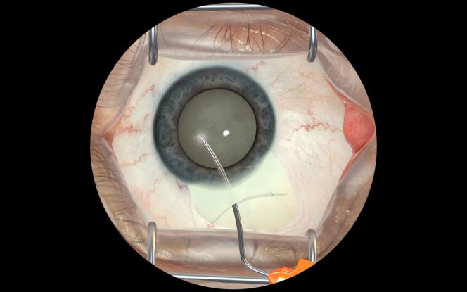 Simulation de la chirurgie de la cataracte.