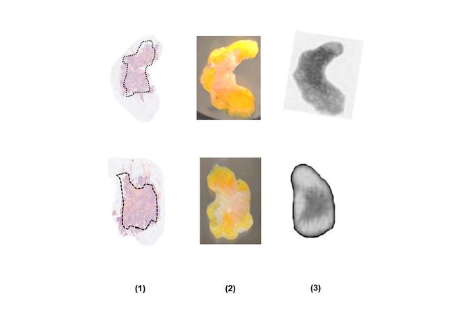 Echantillons de tissu mammaire humain vus après traitement avec une coloration histopathologique (I) révélant les régions cancéreuses (entourées de pointillés)  , à l'œil nu (II) et avec une caméra terahertz (III).