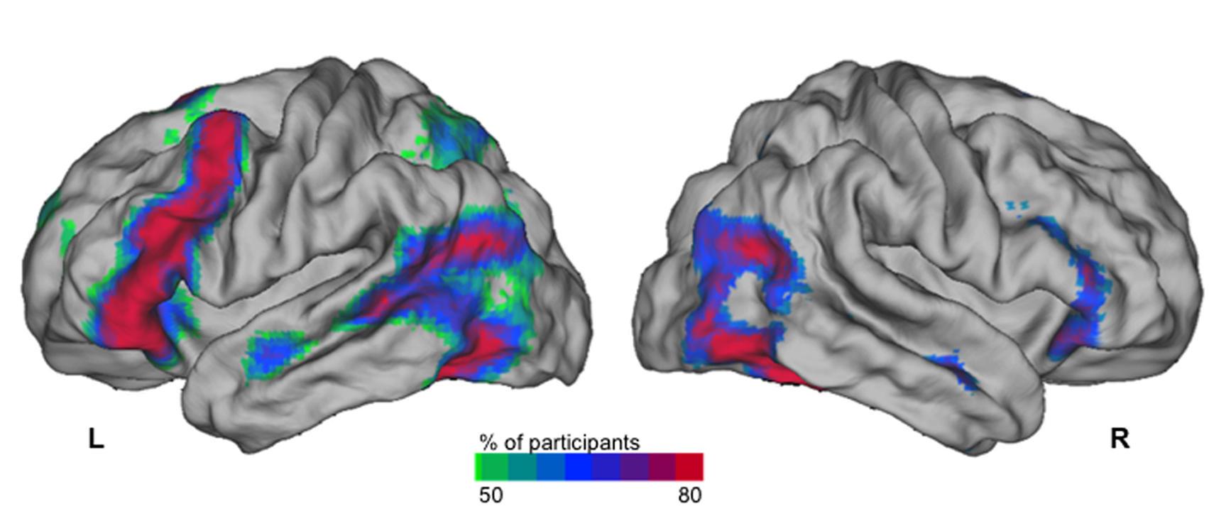 Carte des régions cérébrales activées en IRM fonctionnelle