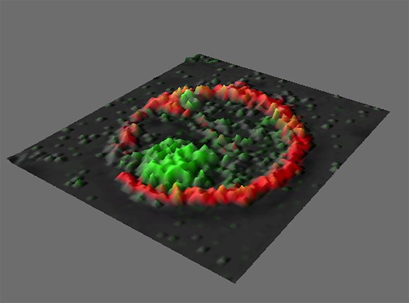 Vue au microscope de cellules dendritiques plasmacytoïdes (pDC)