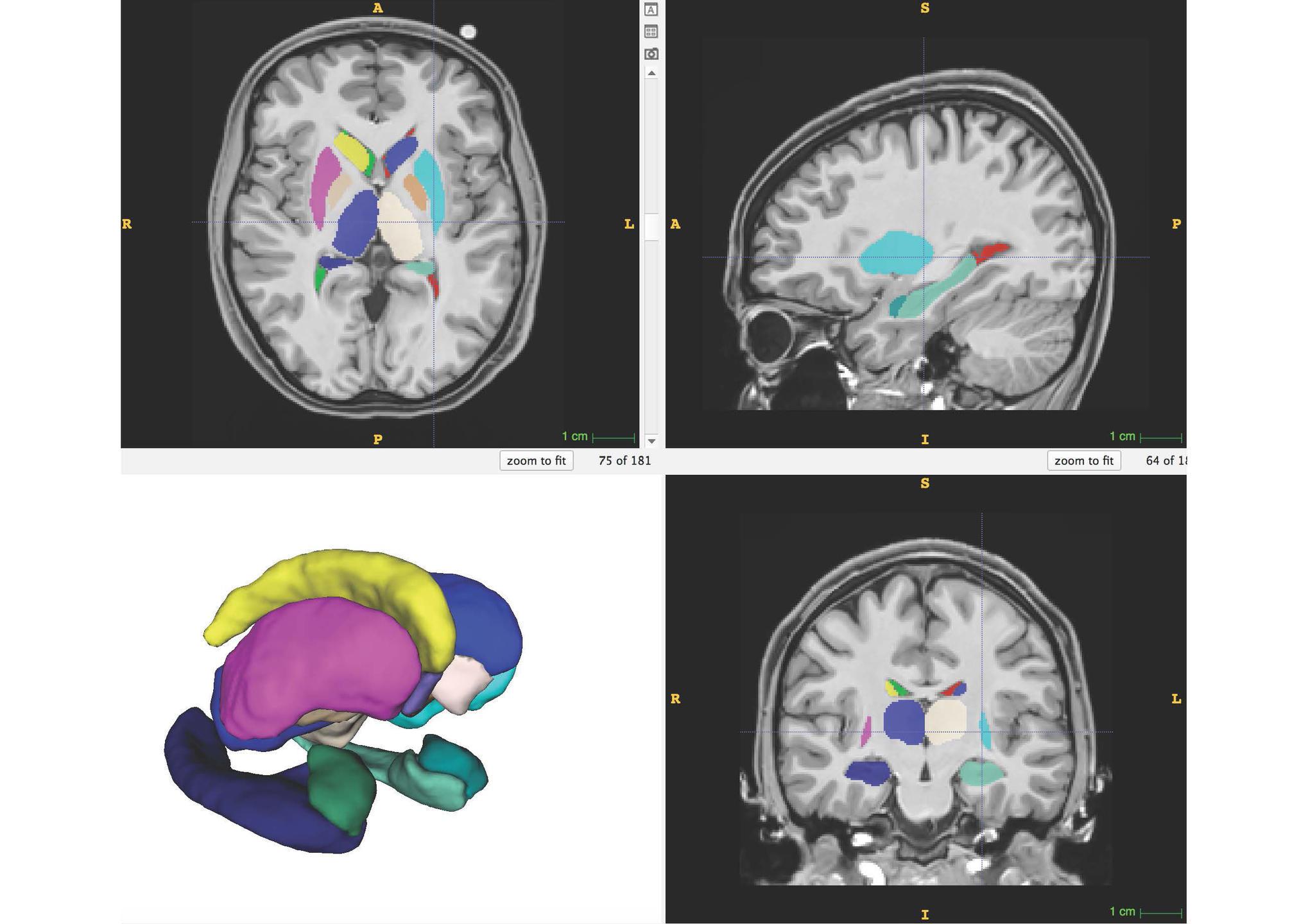 Segmentation et représentation 3D des structures sous-corticales par volBrain