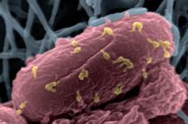 Image en microscopie électronique à balayage colorisée d'une bactérie attaquée par des bactériophages