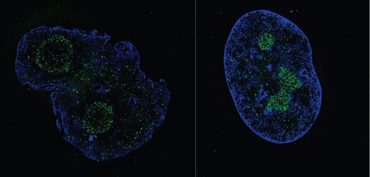 Comparaison de cellules dans le traitement de la Progeria
