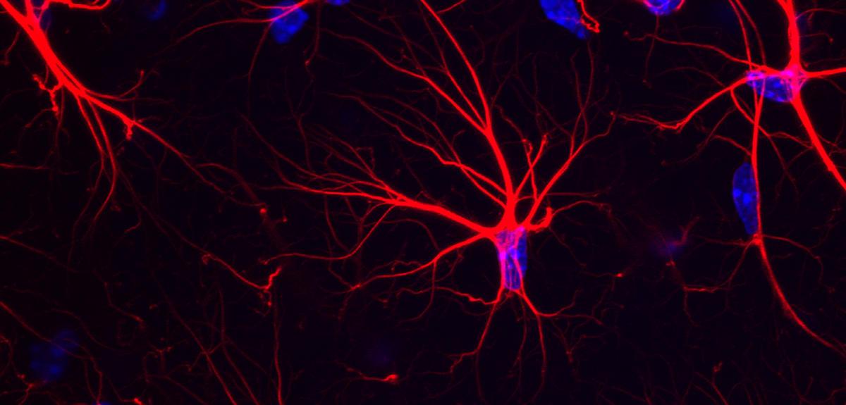 Un nouveau régime pour freiner Alzheimer?